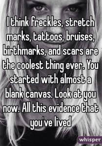 freckles stretchmarks